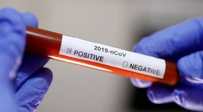 Türkiye Anlık Koronavirüs Sayısını Gösterir Sistem Açıldı