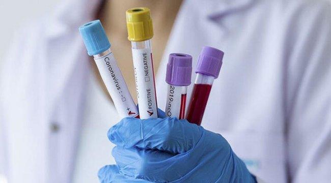 Plazma tedavisi uygulanan Kovid-19 hastasının testi negatife döndü