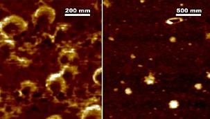 Koronavirüsün Mikroskoptan Görüntüsü